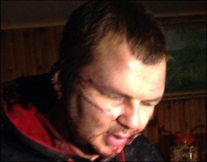 Dmytro Bulatov following his release on Jan 30, 2014 from a kidnapping